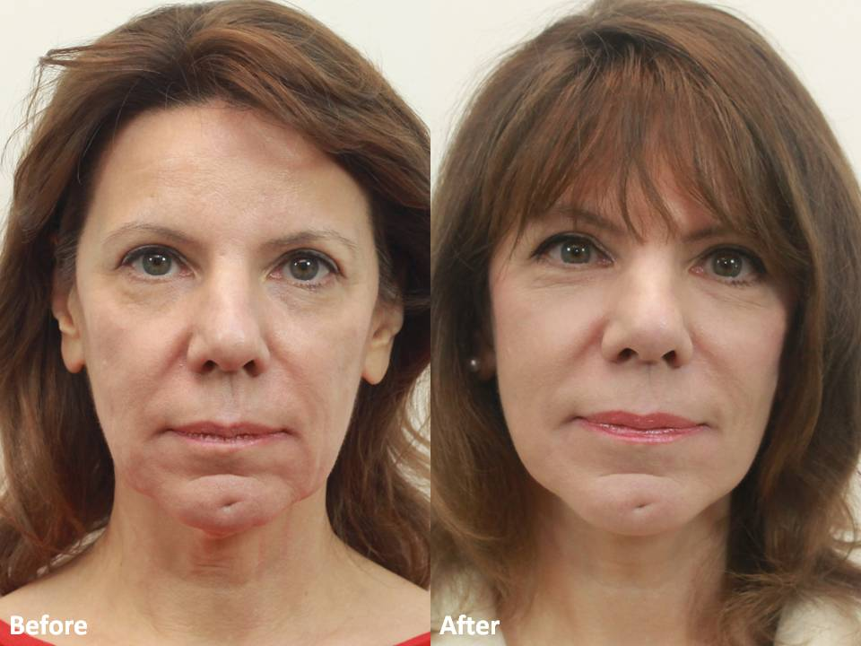 Dr Darm MiniLift Before and After - CC (3)