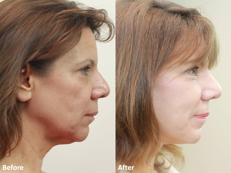 Dr Darm MiniLift Before and After - CC (4)