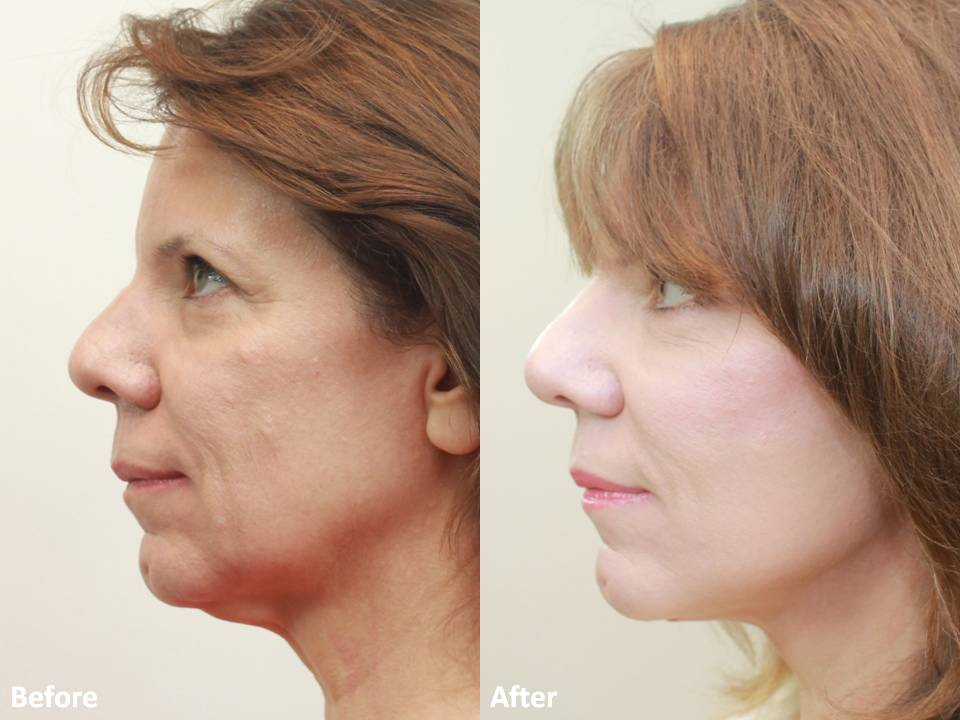 Dr Darm MiniLift Before and After - CC (5)