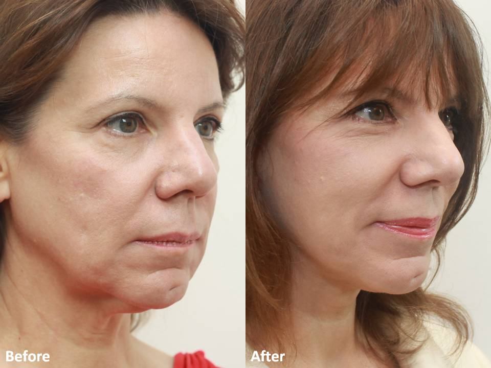 Dr Darm MiniLift Before and After - CC (6)