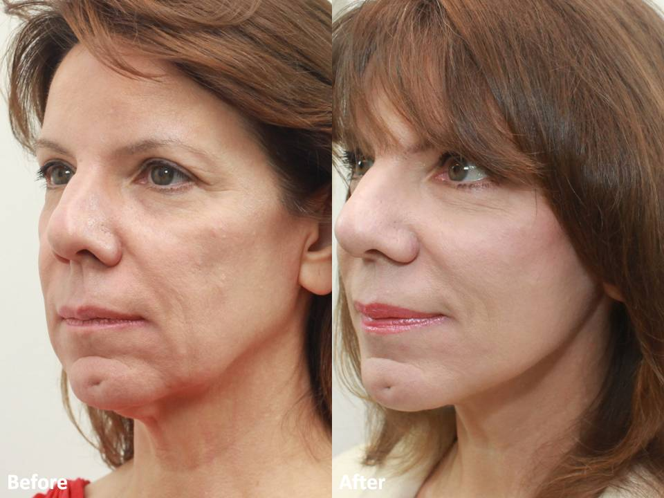 Dr Darm MiniLift Before and After - CC