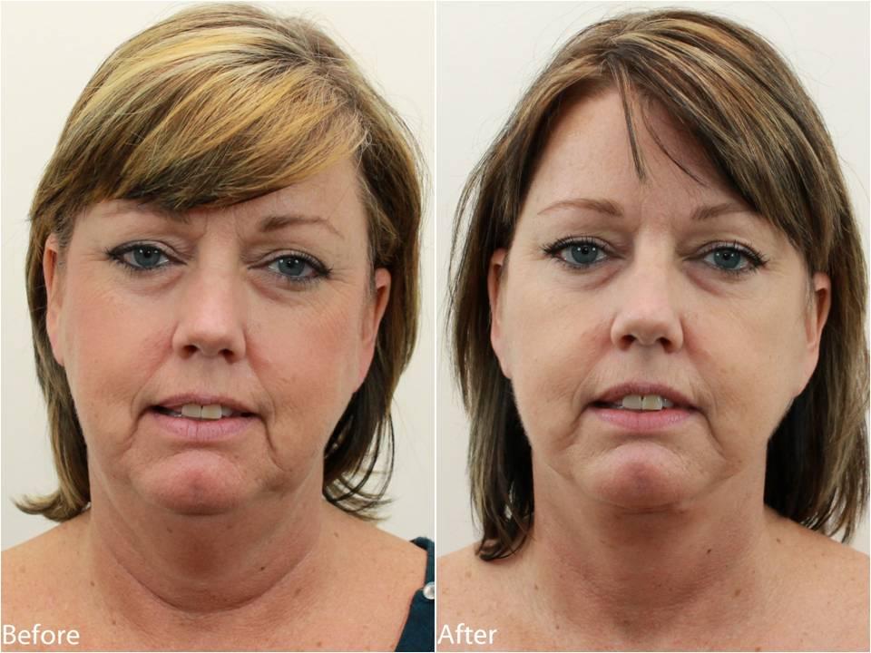 Dr Darm Necklift Before and After - KS Slide1