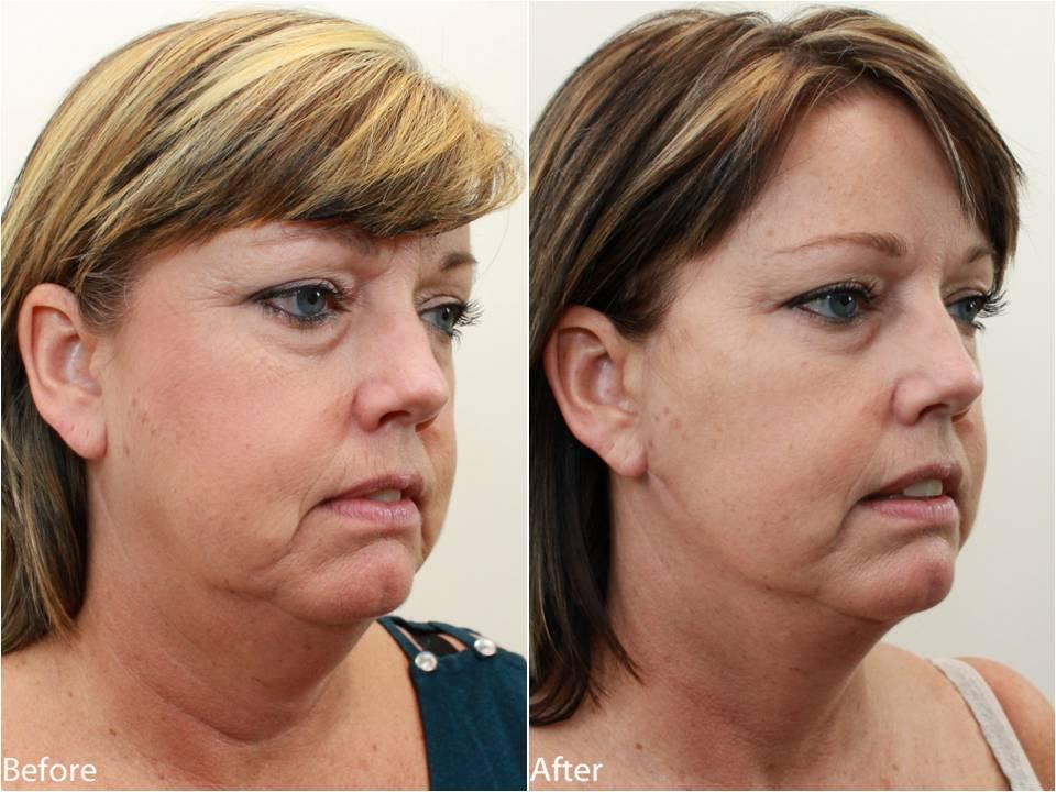 Dr Darm Necklift Before and After - KS Slide2