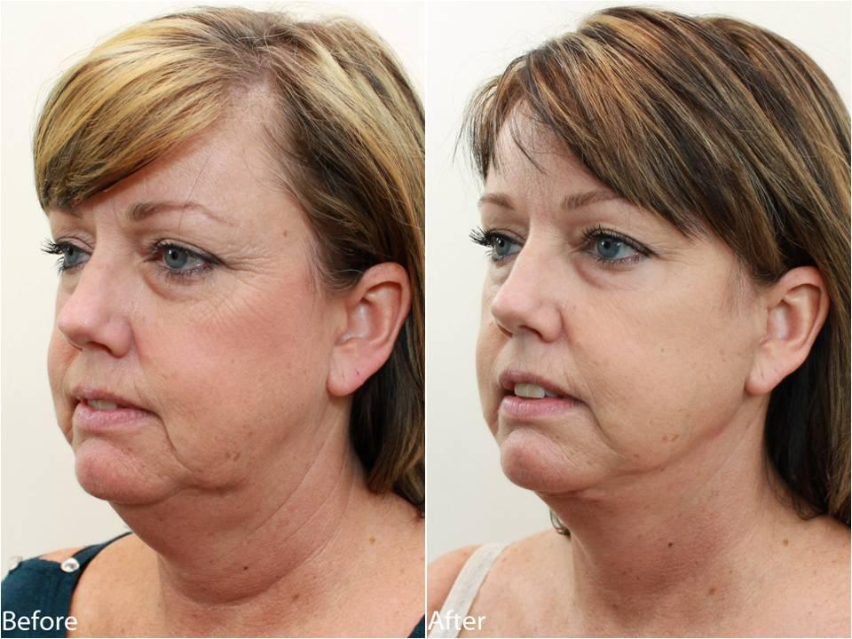 Dr Darm Necklift Before and After - KS Slide3