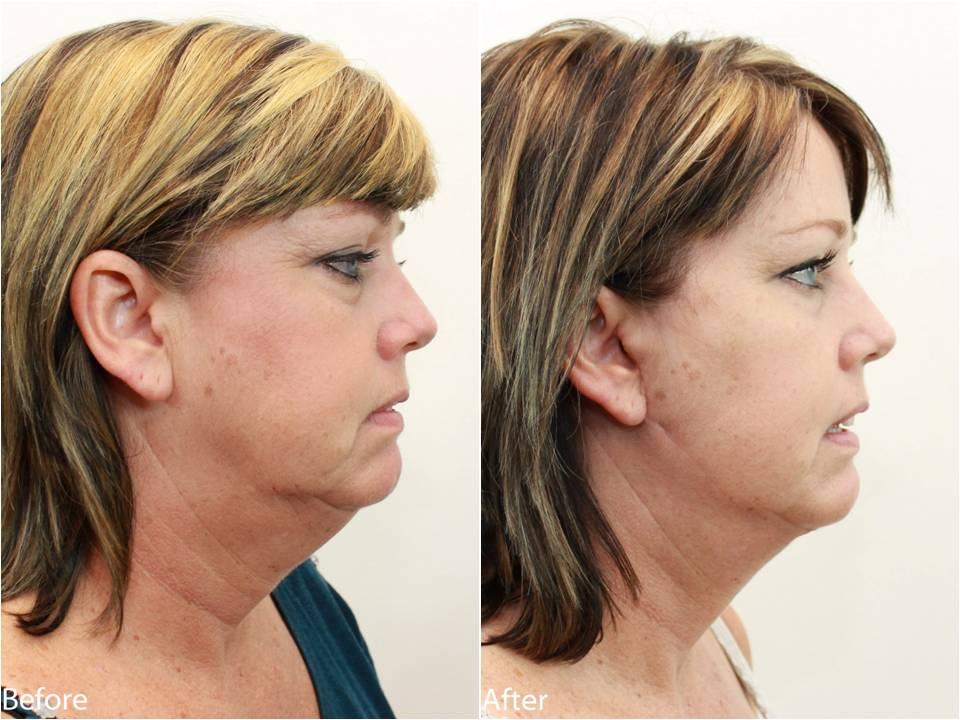 Dr Darm Necklift Before and After - KS Slide4