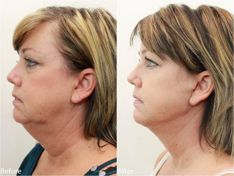 Dr Darm Necklift Before and After - KS Slide5