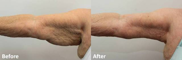 Dr Darm Plastic Surgery Arms Before and After - RB Slide1
