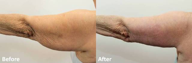 Dr Darm Plastic Surgery Arms Before and After - RB Slide3