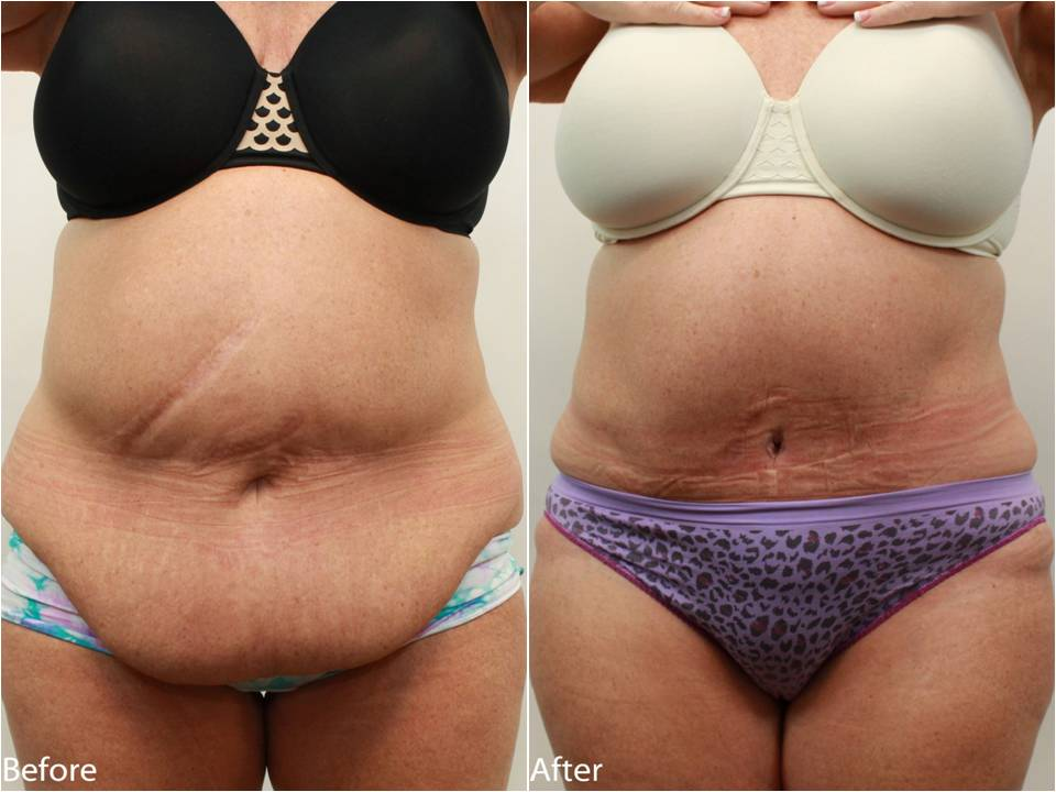 Abdominoplasty - Tummy Tuck After Weight Loss Surgery ...