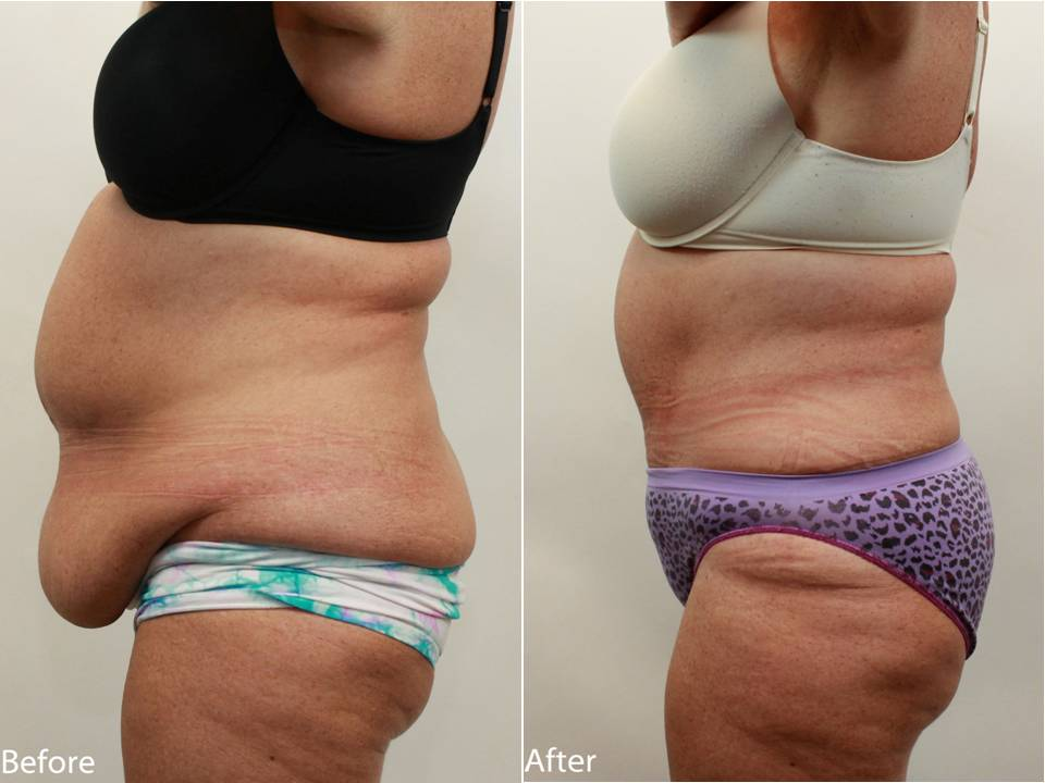 Dr Darm Plastic Surgery Tummy Tuck Before and After - GD Slide3