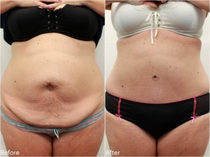 Dr Darm Tummy Tuck Before and After - KS Slide1