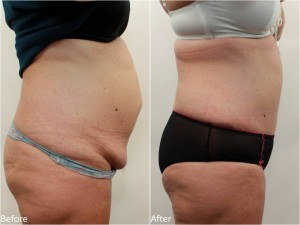 Dr Darm Tummy Tuck Before and After - KS Slide2