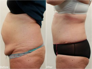 Dr Darm Tummy Tuck Before and After - KS Slide3