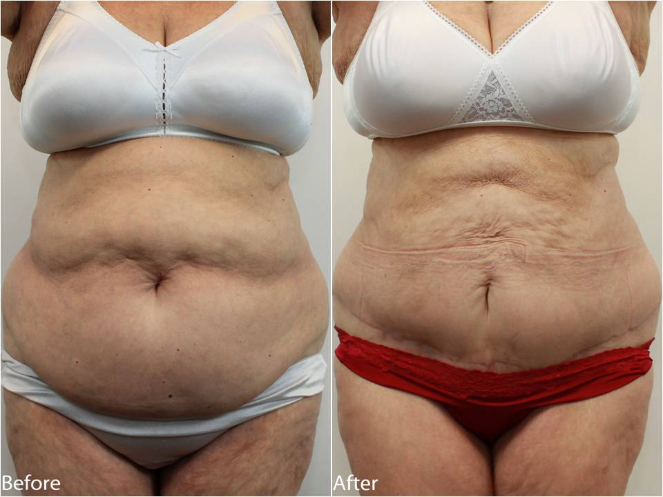 Dr Darm Tummy Tuck Before and After - RB Slide1
