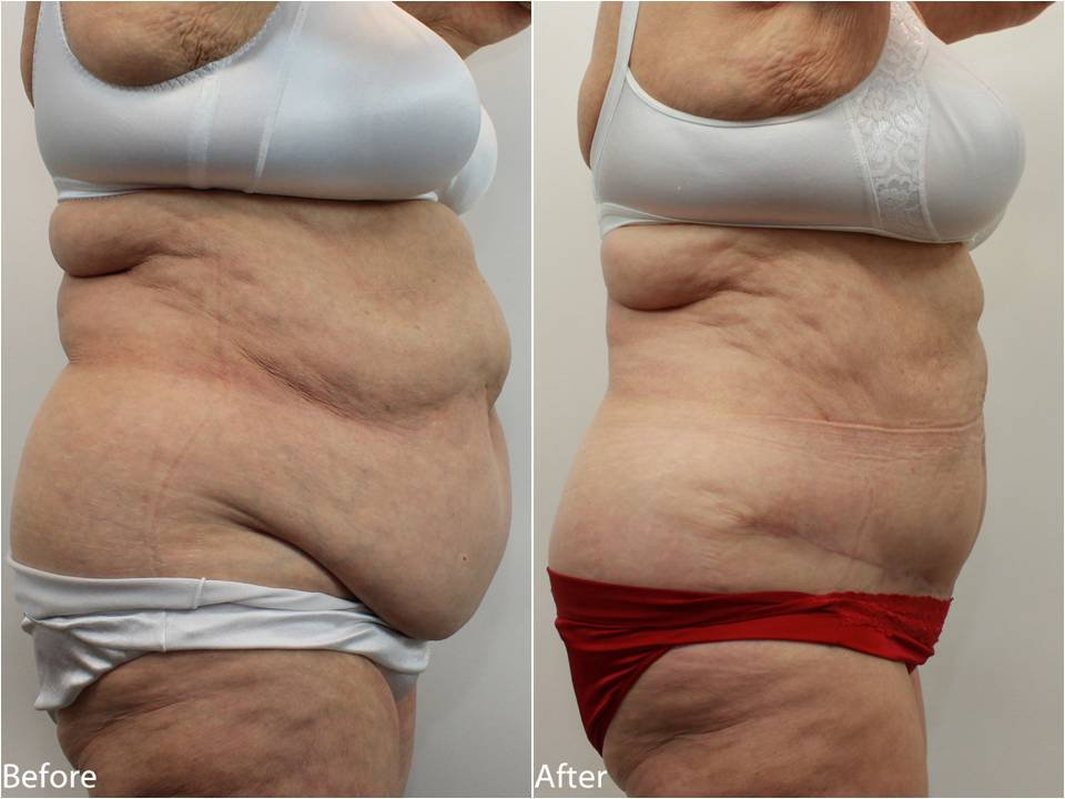Tummy Tuck Before And After Weight Loss Burmes Fede