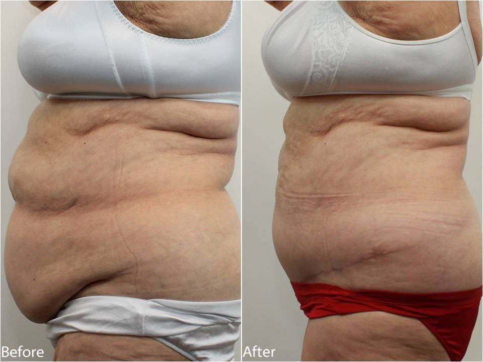 Dr Darm Tummy Tuck Before and After - RB Slide3