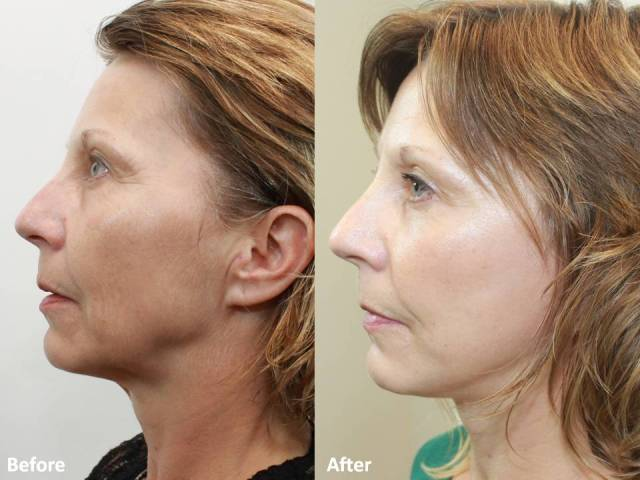 Dr. Darm MiniLift Before and After MB