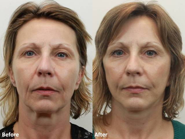 Dr. Darm MiniLift Before and After MB  (2)