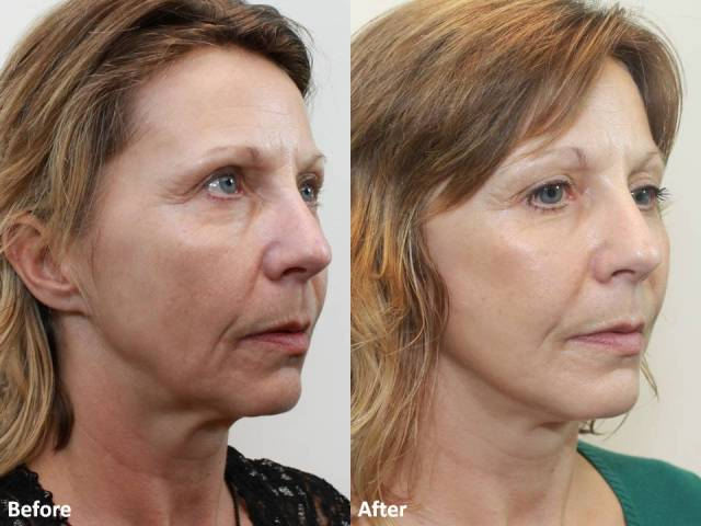 Dr. Darm MiniLift Before and After MB  (3)