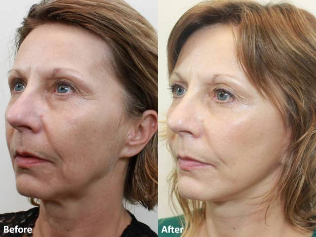 Dr. Darm MiniLift Before and After MB  (4)