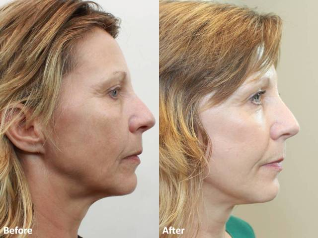 Dr. Darm MiniLift Before and After MB  (5)