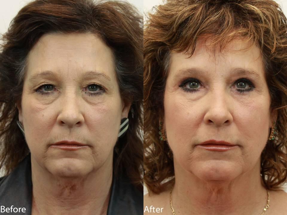 Dr. Darm Plastic Surgery Eyelids Slide1