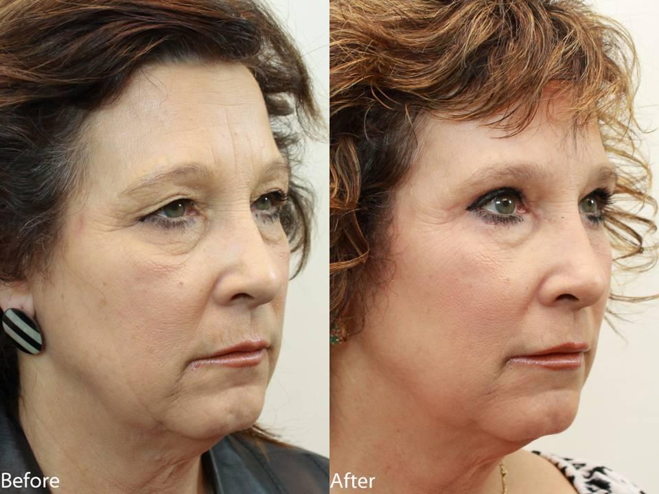 Dr. Darm Plastic Surgery Eyelids Slide2