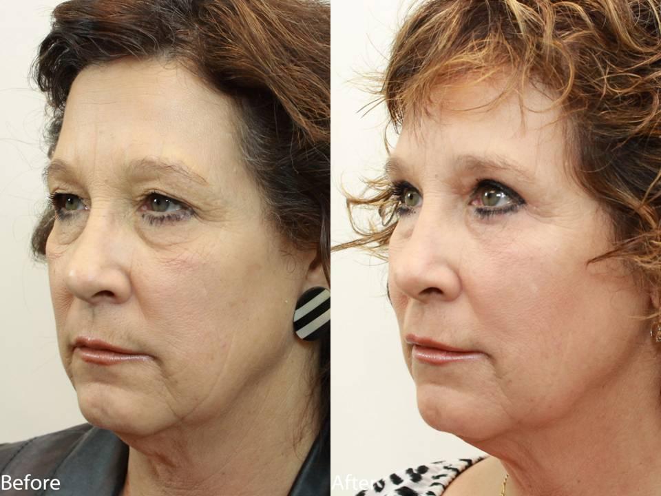 Dr. Darm Plastic Surgery Eyelids Slide3