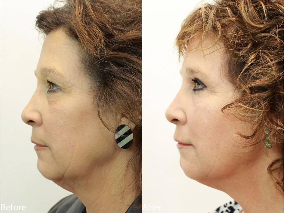 Dr. Darm Plastic Surgery Eyelids Slide5