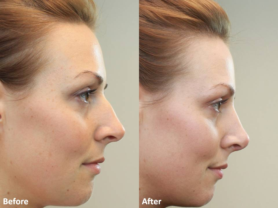 r. Darm, Rhinoplasty Before and After MT Slide4
