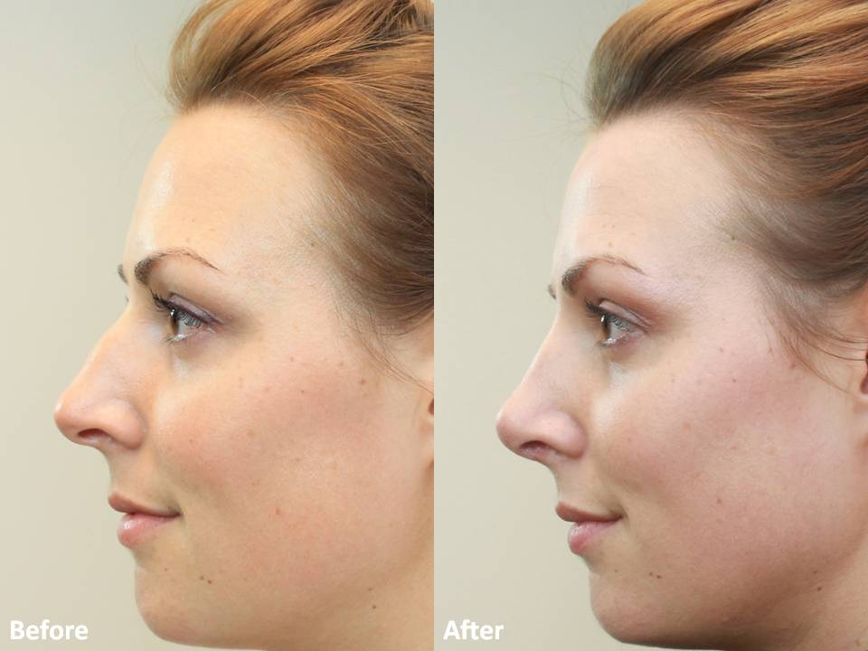 r. Darm, Rhinoplasty Before and After MT Slide5