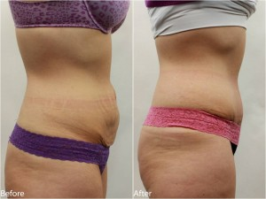 Dr. Darm Tummy Tuck Before and Afters - TB Slide1