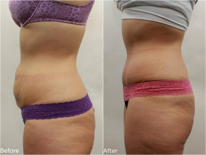 Dr. Darm Tummy Tuck Before and Afters - TB Slide2