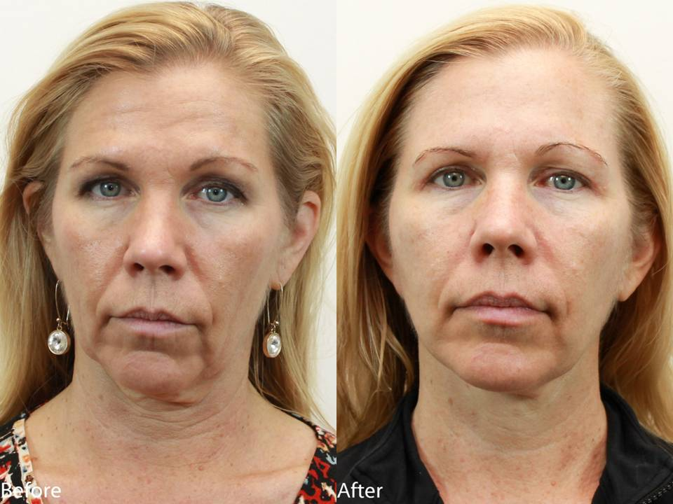 Dr. Darm, NeckLift Before and Afters - LN Slide1