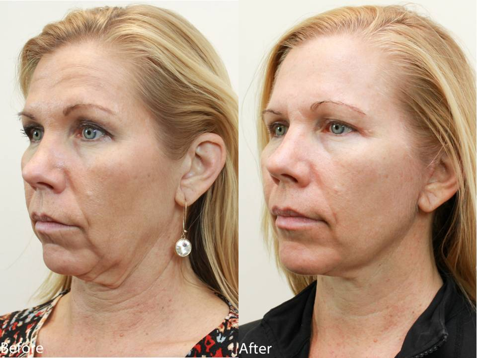 Dr. Darm, NeckLift Before and Afters - LN Slide3