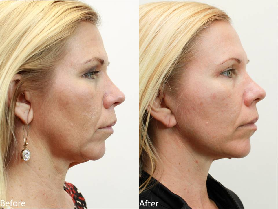 Dr. Darm, NeckLift Before and Afters - LN Slide4