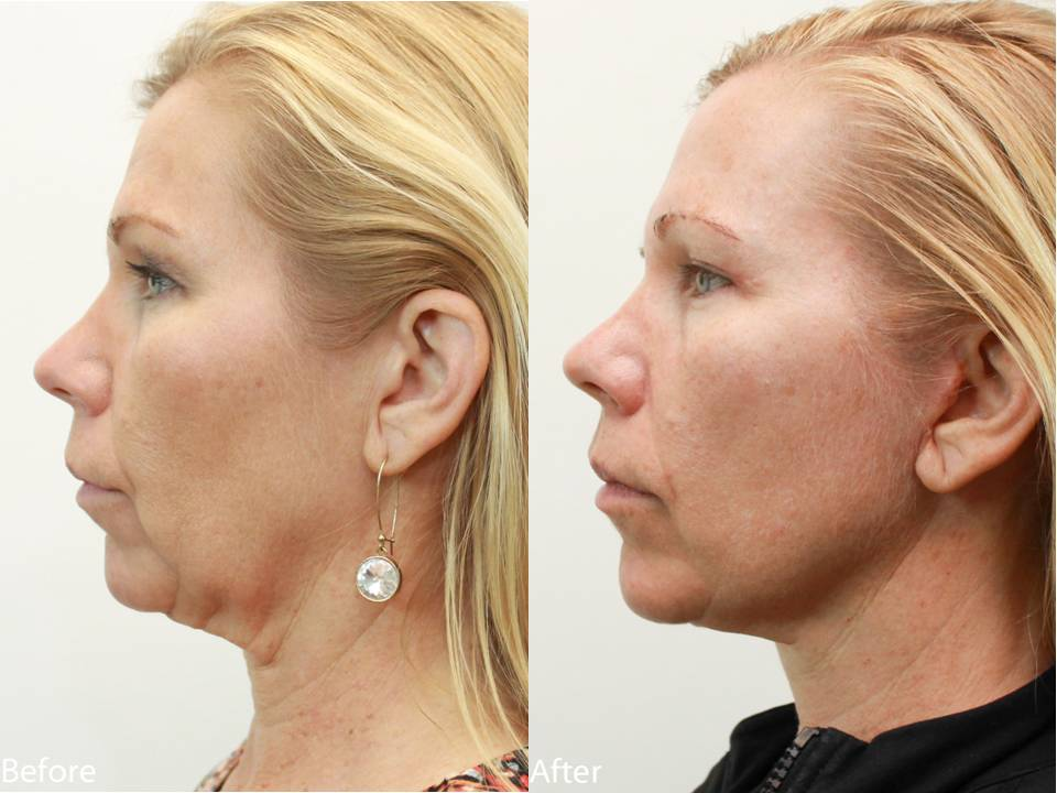 Dr. Darm, NeckLift Before and Afters - LN Slide5