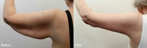 Arm lift before and after - Slide1 drdarm