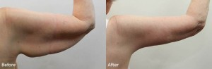 Arm lift before and after - Slide2 drdarm