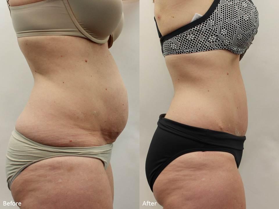 смотреть убрать жир живота