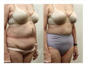 Tummy Tuck RG3